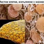 Мастни клетки, изпълнени с мазнини